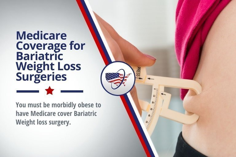 Medicare Coverage for Bariatric Weight Loss Surgeries